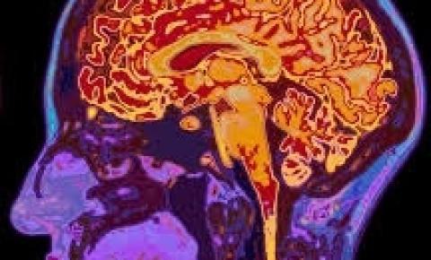Doença de Huntington: condição rara afeta as capacidades motoras, cognitivas e psiquiátricas do paciente